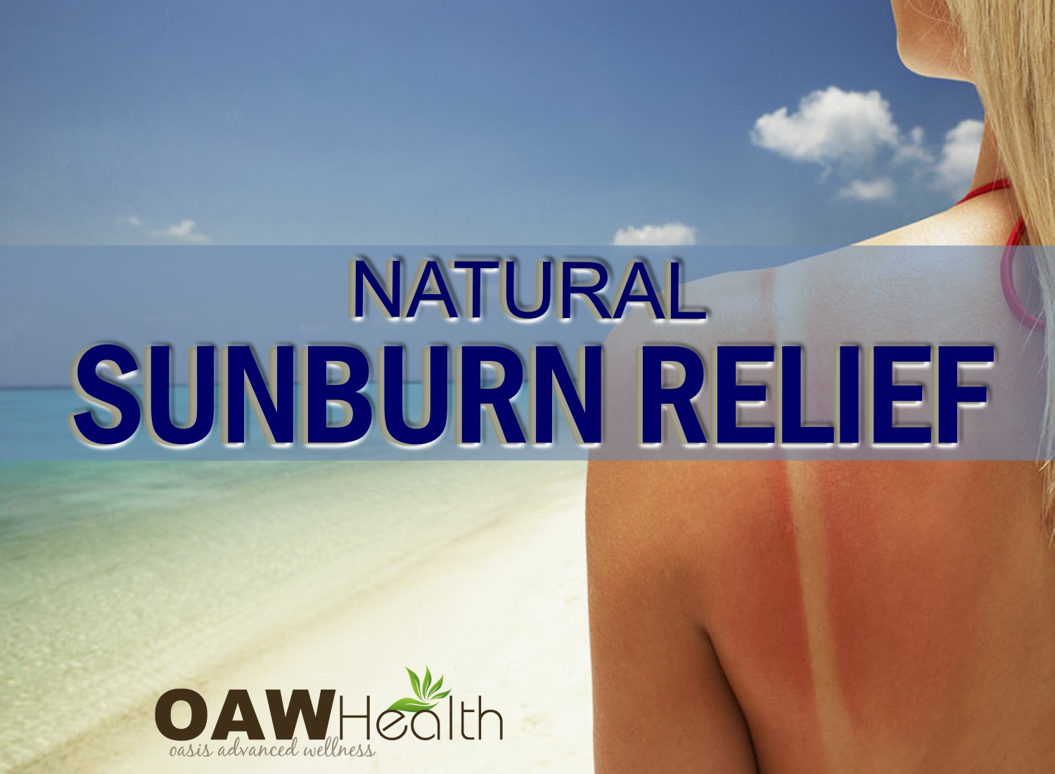 Natural Sunburn Relief