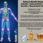 arthritis osteoarthritis gout bursitis remedy