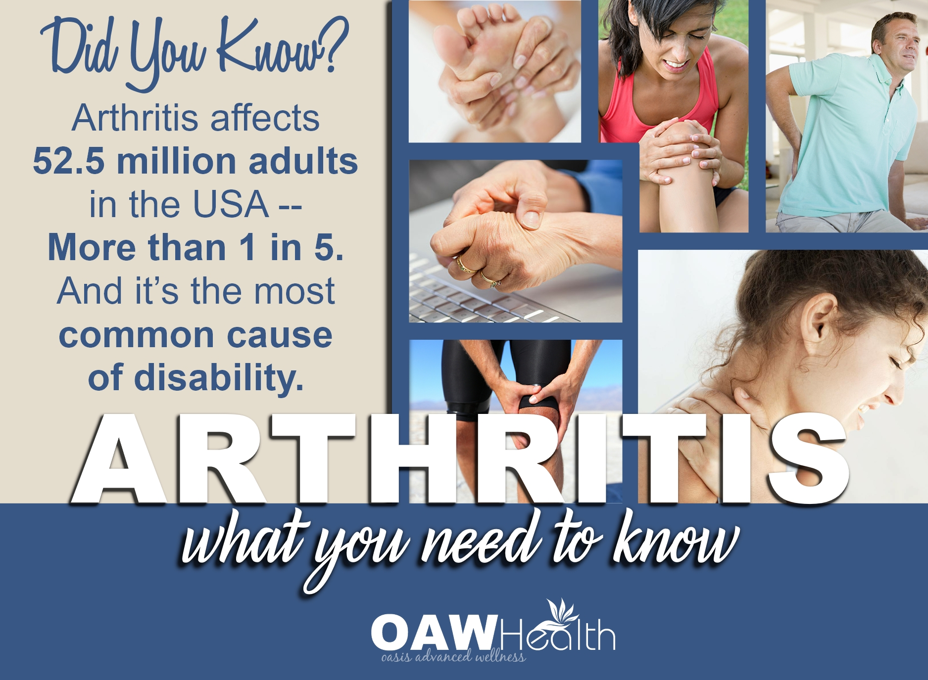 Arthritis – What You Need to Know
