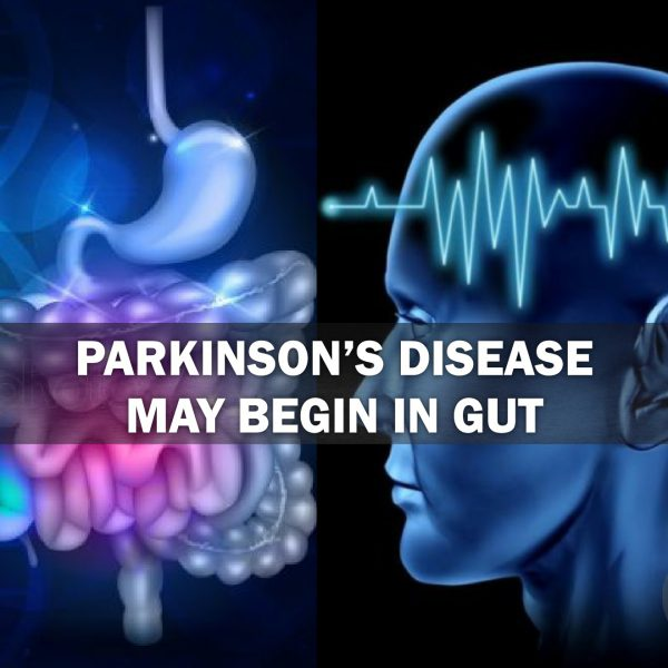 Large Study Parkinson's Disease May Begin in Gut