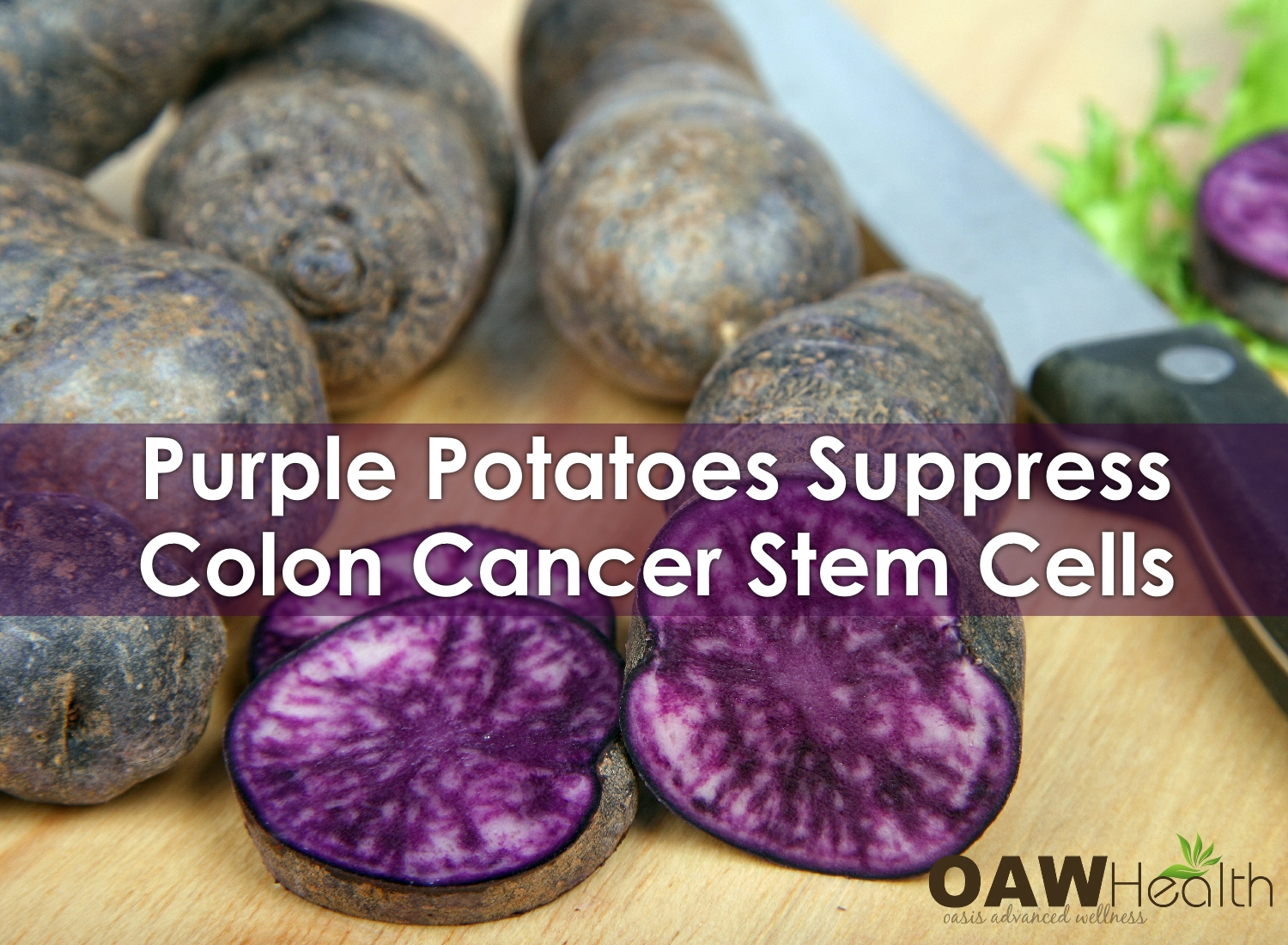 Purple Potatoes Suppress Colon Cancer Stem Cells