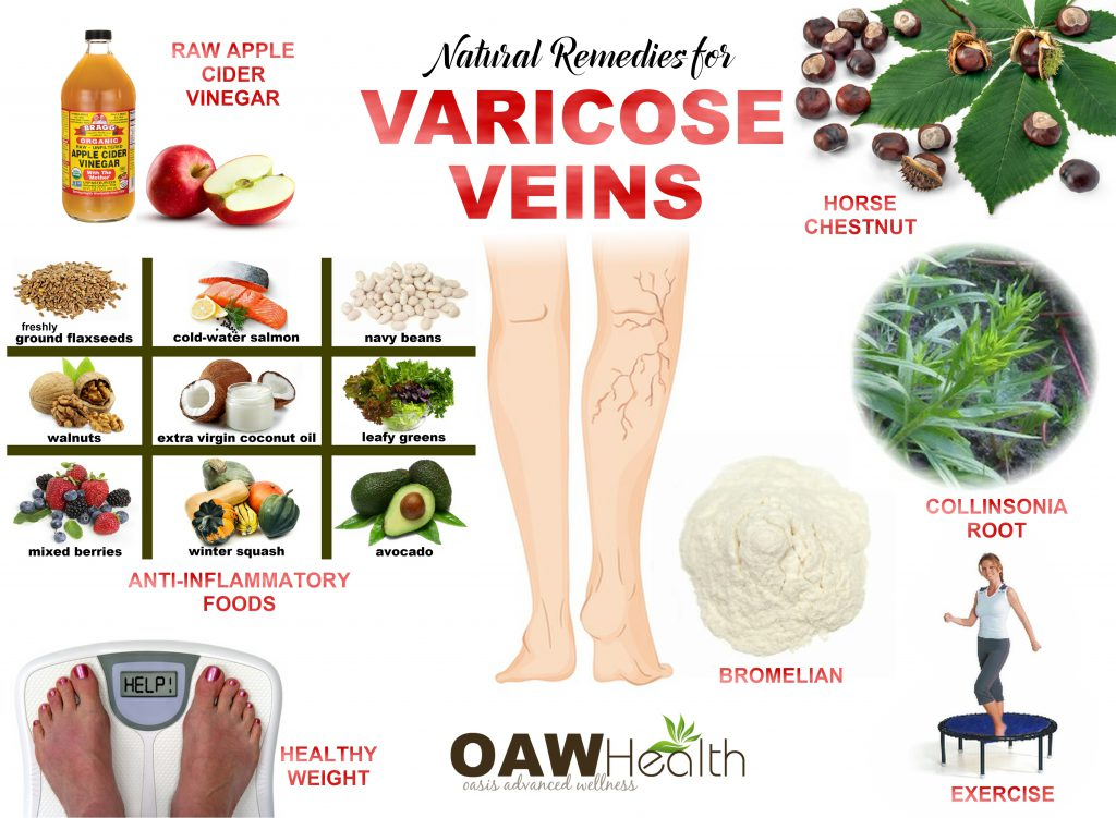 varicose veins - chart
